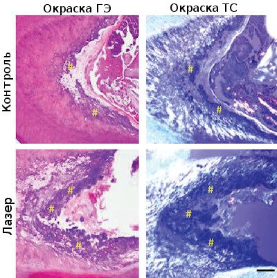 Дифференцировка зубных стволовых клеток в дентин