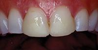 Старые композитные виниры на зубах 8 и 9