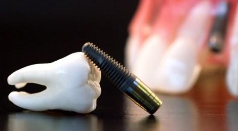 удаление имплантата