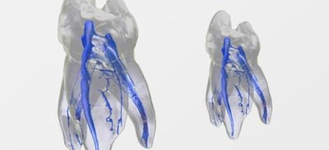 Эндодонтическая диагностика - шаг за шагом (советы практика)