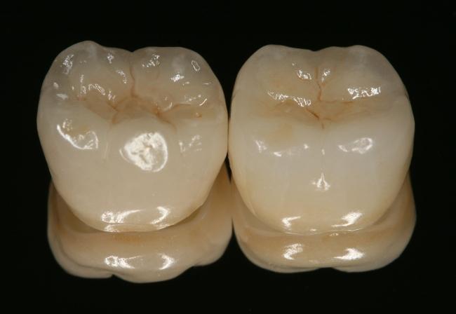 Выживаемость реставраций из дисиликата лития через 4 года - ретроспективное исследование