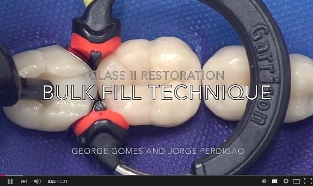 Реставрация с применением Scotchbond Universal и Filtek Bulk Fill (видео)