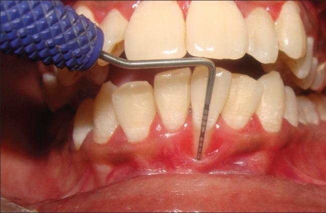 Оценка влияния вертикальных разрезов на эстетические показатели при лечении рецессий десны I и II класса по Миллеру - исследование ротовой полости типа «split-mouth»