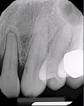 Расширение периодонтальной щели зуба 2.2 вследствие окклюзионной травмы