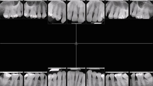 Рис. 7. Прицельные снимки всего рта - оптимальный способ рентген-диагностики нового пациента