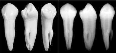 Зуб со сложной анатомией