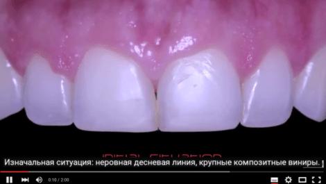 Удлинение коронковой части и реставрация винирами E.max
