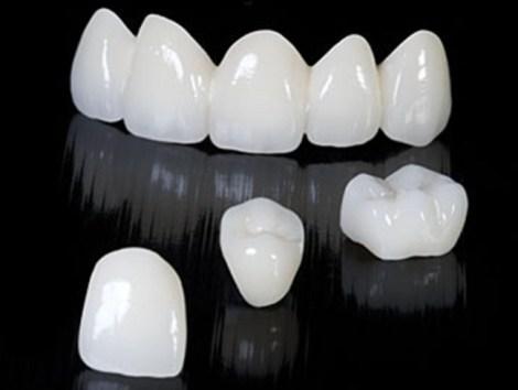 Предел выносливости двухслойной керамики под циклической нагрузкой в зависимости от толщины слоев