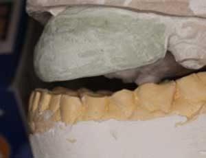 Рис. 3 - Экономичный способ создания хирургического шаблона для аугментации гребня