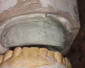 Рис. 5 - Экономичный способ создания хирургического шаблона для аугментации гребня