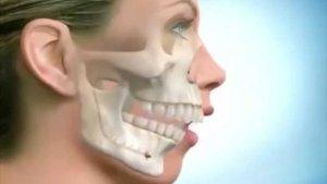 Респираторная функции до и после бимаксиллярной ортогнатической хирургии с редукцией кости на внутреннем крае грушевидного отверстия