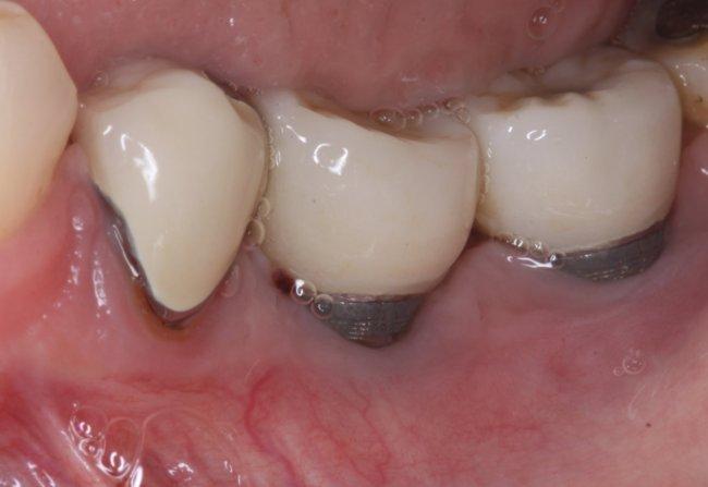 Лазерная деконтаминация против имплантопластики в лечении периимплантита - сравнение результатов в долгосрочном исследовании