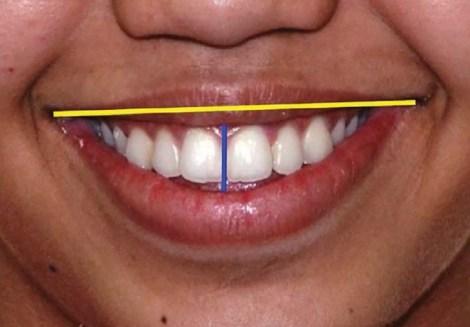Как индекс улыбки, линия края резцов и возраст оценщика улыбки влияют на её восприятие