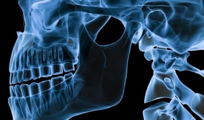 8 наиболее вероятных причин боли в челюсти (ВНЧС) и варианты их лечения - мнение практика