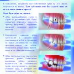 Почему надо ставить протез на место удалённого зуба