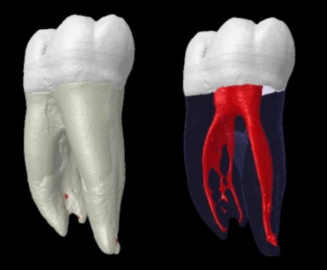 Какое средство наиболее эффективно против биоплёнки в каналах молочных зубов - Результаты in-vitro исследования