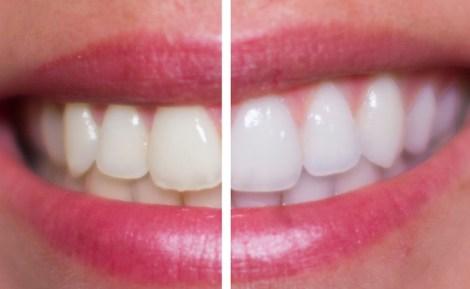 Полезно ли обрабатывать фтором зубы после отбеливания - Результаты исследования