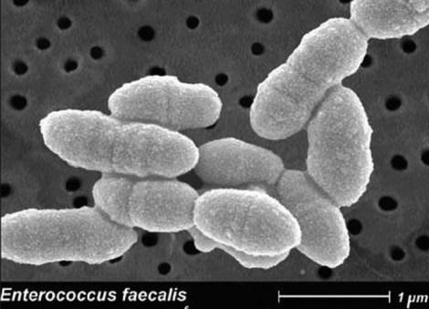 Чистый низин и его смесь с NaOCl против E. faecalis - результаты исследования