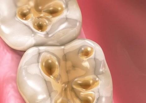 Как способ обработки разрушенного дентина влияет на силу адгезии