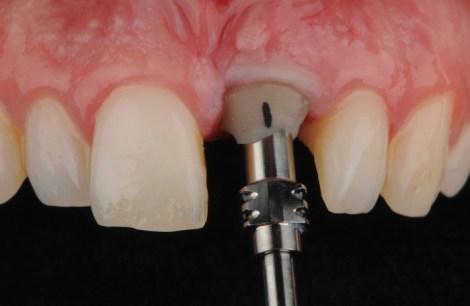 Влияние съёма и повторной установки постоянных абатментов на приживаемость, состояние кости и мягких тканей