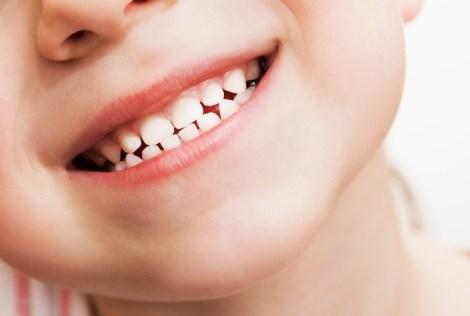 Композитные реставрации в молочных зубах: выживаемость и факторы риска