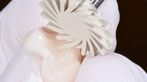 Сравнение гибридной керамики с другими используемыми в стоматологии материалами: обзор литературы