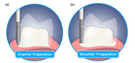 Предпочтения в препарировании зубов под коронки