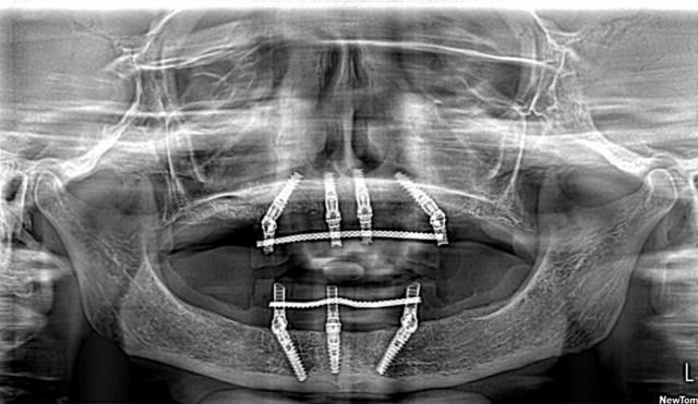 All-on-3 - ортопантомограмма, верхняя челюсть - All-on-4