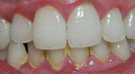 Разные средства удаления налёта между зубами