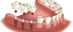 implantologija2