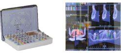 bb dental navigaciona implantologija