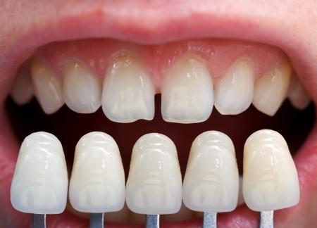 Избјељивање зуби соде бикарбоне