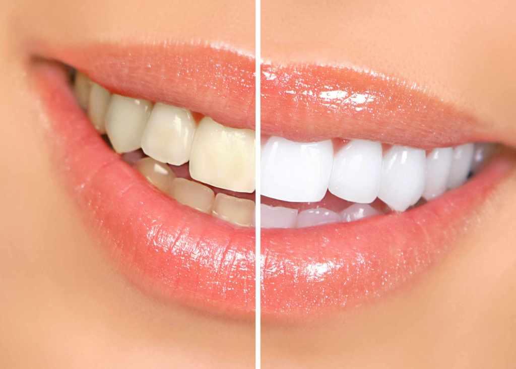 zubi prije i poslije izbjeljivanja