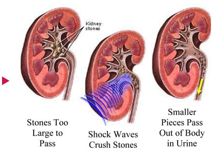 What is lithotripsy stone institute of the carolinas llc lithotripsy process diagram ccuart Image collections