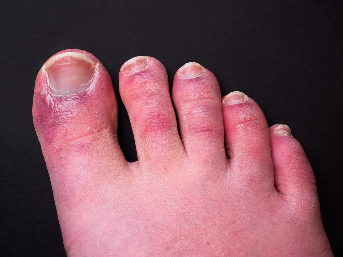 """New Study Says Aggressive Immune Response Causes """"Covid Toes"""""""