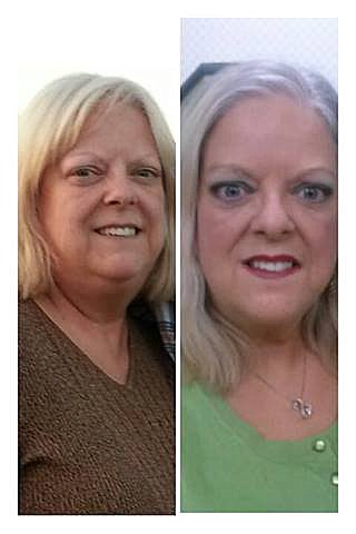 Losing Weight With Hypothyroidism Success Stories : losing, weight, hypothyroidism, success, stories, Levothyroxine, Weight, Success, Stories, WeightLossLook