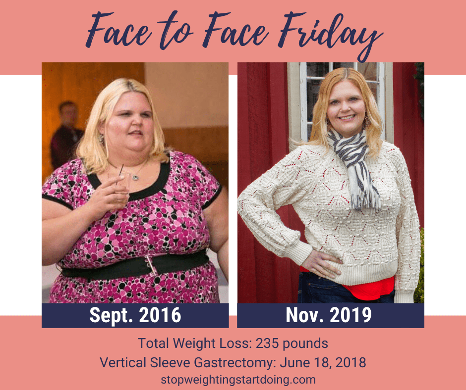 A Comparison Photo of Nicky Bicksler after losing 235 pounds. 15 Super Simple Life Changes to Lose Weight for Good | Comparison Photo Two | easy diet changes to lose weight, simple life changes to help you lose weight, simple life changes to lose weight