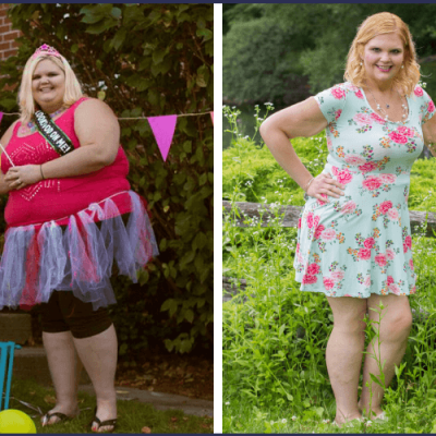 Gastric Sleeve Before and After: Loving This Crazy Amazing Life