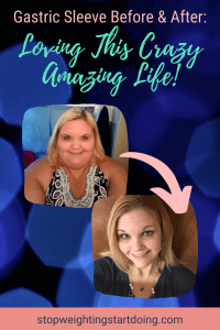 A comparison photo of Nicky Bicksler before and after gastric sleeve. | Gastric Sleeve Before and After: Loving this Crazy Amazing Life! | Pinterest Graphic01 | Gastric Sleeve Surgery Before and After, Sleeve Surgery