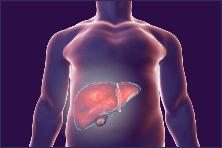 A digital image of an overweight man with the liver highlighted. |The Best Tips You'll Want for The Liver Shrinking Diet | 9 Tips You'll Need | Image | liver reducing diet, liver shrinking diet cheating