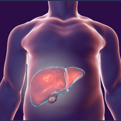 The Best Tips You'll Want for the Liver Shrinking Diet