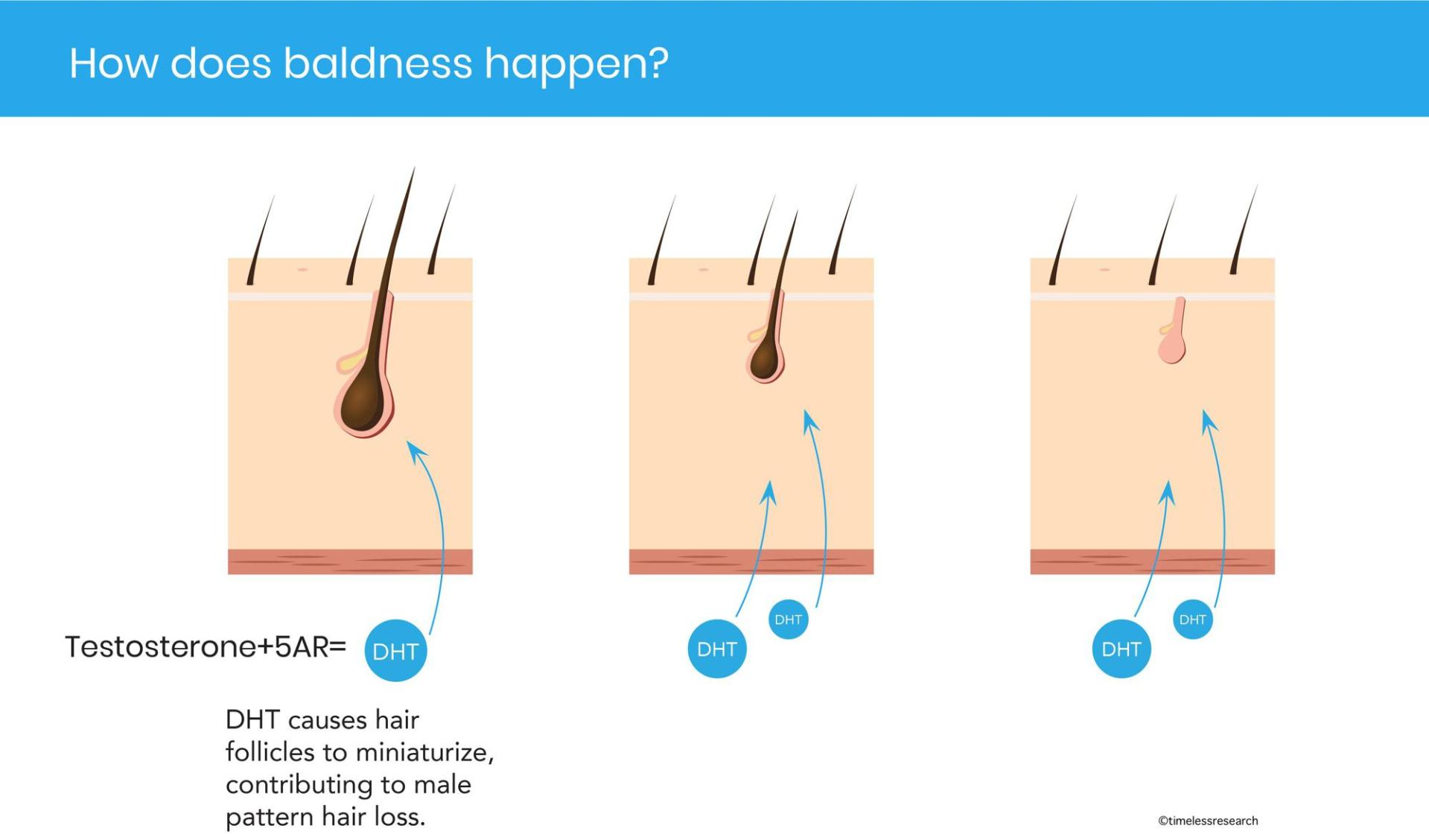 The 4 Best Hair Loss Treatment for 2021