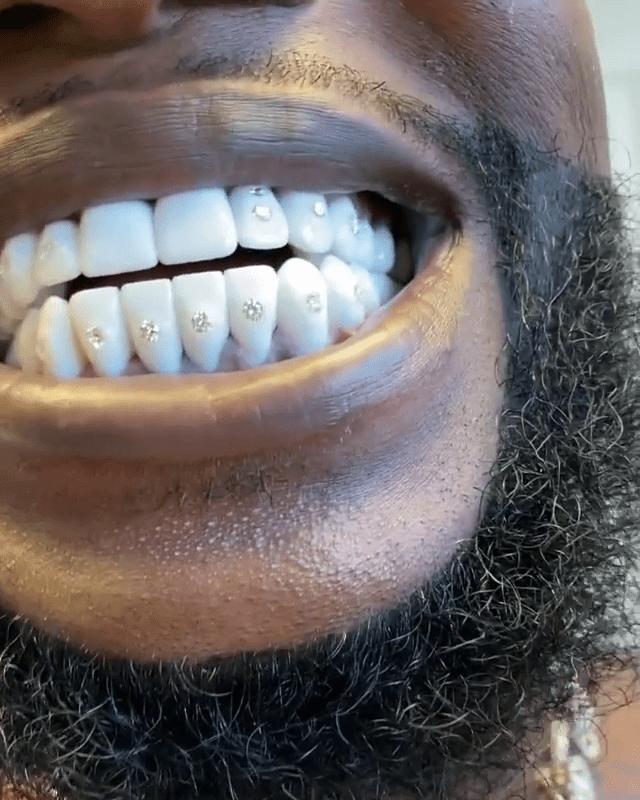 Permanent White Gold Teeth : permanent, white, teeth, Rapper, Gucci, Drops, 0,000, Diamonds, TEETH, Insane, Photos!!