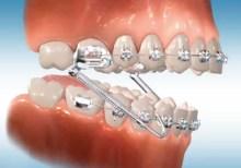 Jenis Behel Gigi- Global Estetik Dental Care
