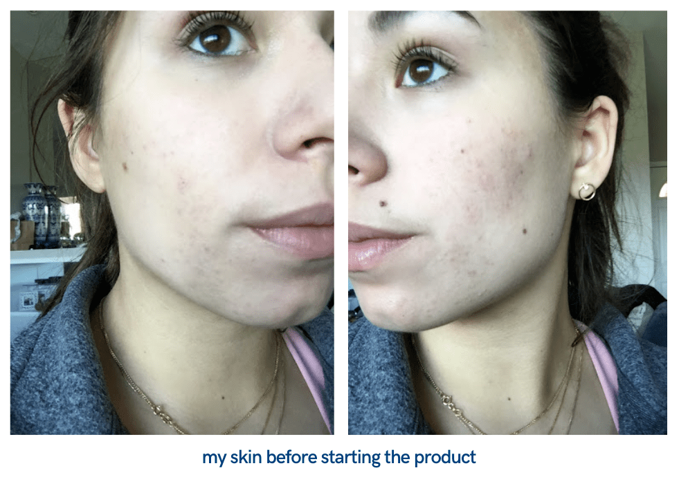 The Ordinary AHA + BHA Peeling Solution: Before and After ...