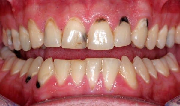 Image via Vermont Dentistry