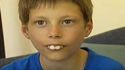 bucktoothed-kid-transformation