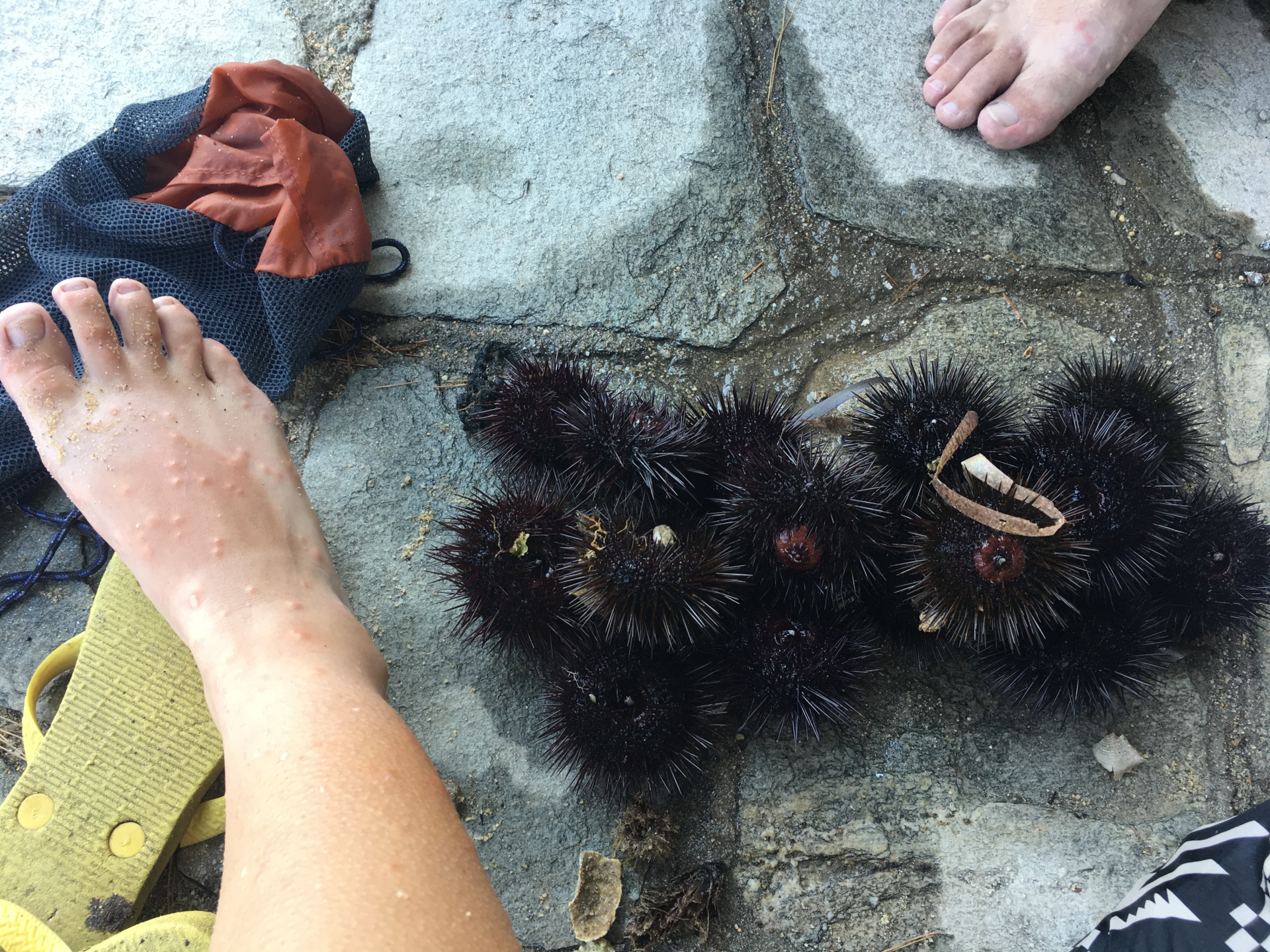mosquito-bites-and-sea-urchins