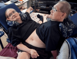 Video: World's Oldest Living Conjoined Twins At 66