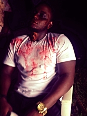 BREAKING NEWS!: Singer OmoAkin Attacked By Wild Animal   GRAPHIC PHOTO